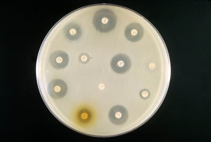 example, antibiotic, sensitivity, test, mixed, culture, coli, proteus