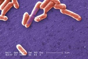 Gramm, negative, Escherichia coli, Bakterien, O157, Coli, O157, Bakterium
