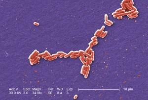grossissement, 3418x, colorisées, micrographie, gram, négatif, Escherichia coli, des bactéries,