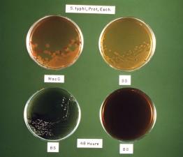 media, enterobacteriaceae, family, members, grown
