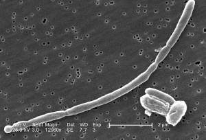 détails morphologiques, rejoints, gram, négatif, escherichia coli, des bactéries, des bactéries