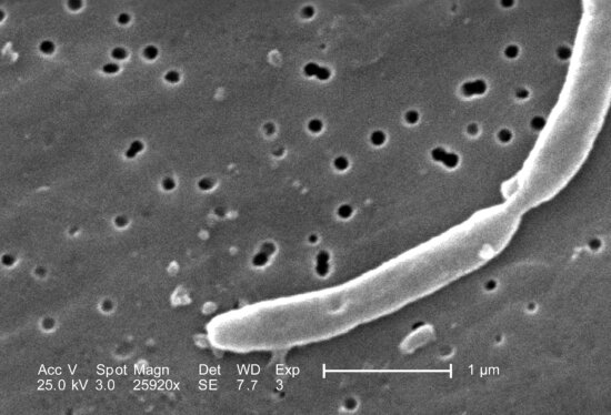 morphological details, two, joined, gram, negative, escherichia coli, bacteria