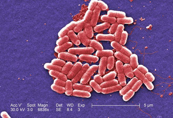Gramm, negative, Escherichia coli, Bakterien