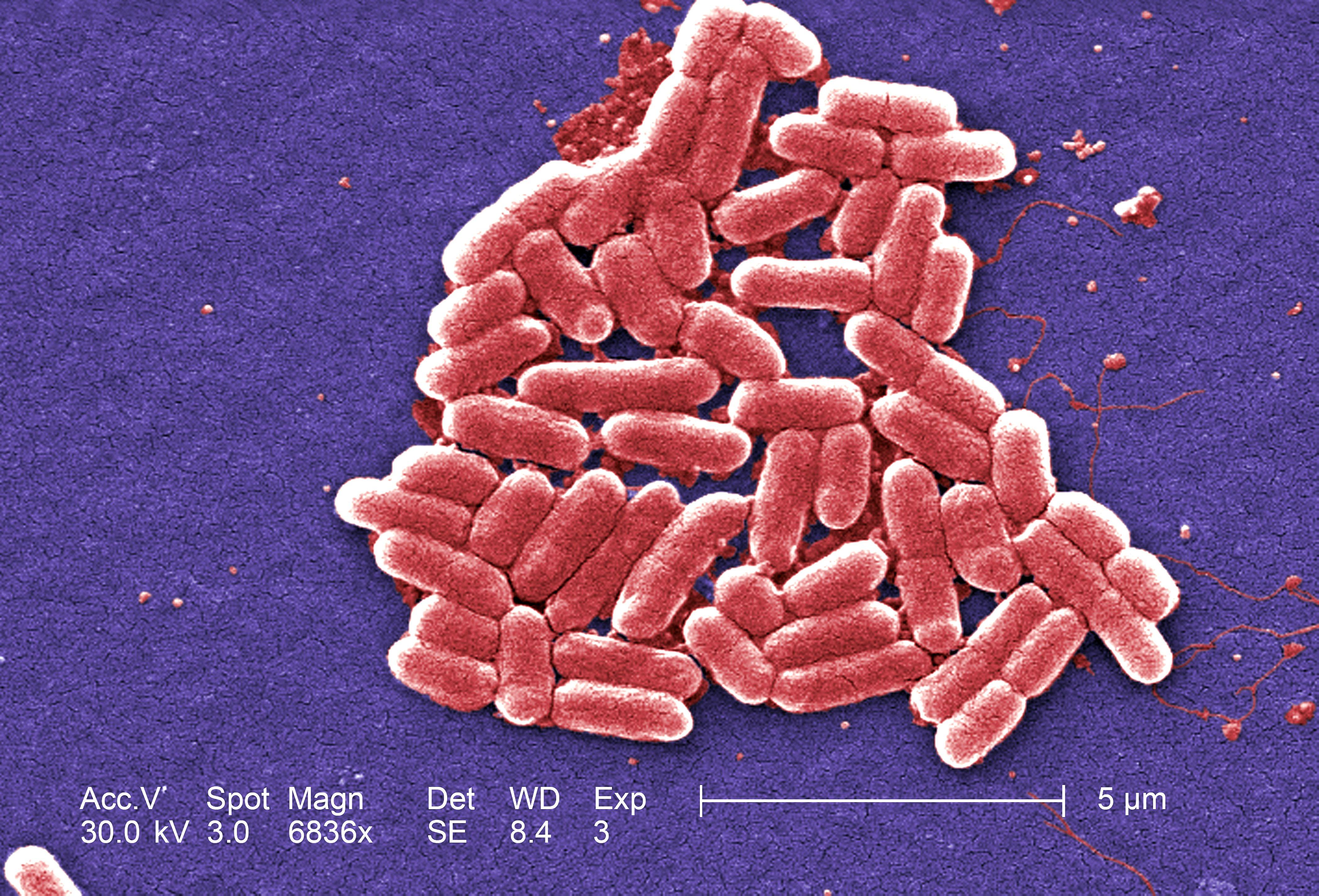 free picture  gram  negative  escherichia  coli  bacteria