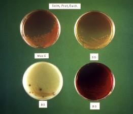 typhi, coli, proteus, bakterier, kulturperler, fire, forskellige, kultur, medier