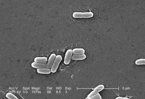 Scannen, elektronenmikroskopische Aufnahme, gram, negative, Escherichia coli, Bakterien