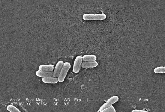 scanning, electron micrograph, gram, negative, escherichia coli, bacteria