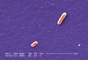 dos, gramo, negativo, Escherichia coli, bacterias, tensión, O157, coli