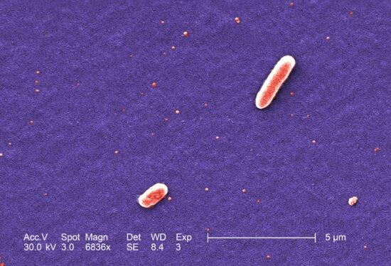 two, gram, negative, Escherichia, coli, bacteria, strain, O157, coli