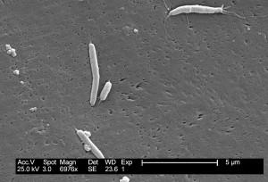 flexispira rappini, bakterier, forstørret, 6976 x