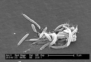 flexispira rappini, bakterier, efterfølgende fastslået, tæt, relaterede, helicobacter