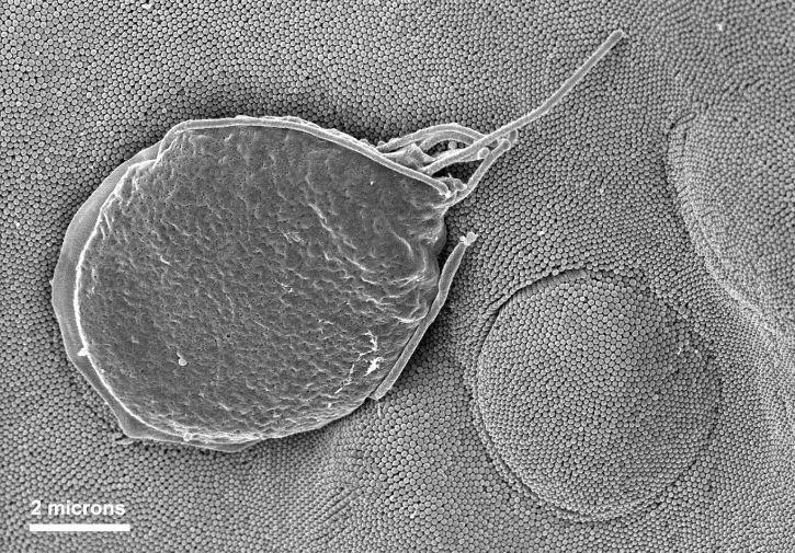 Giardia, muris, protozoan, napunjenim, microvillous, granice, crijeva, epitelne, stanice