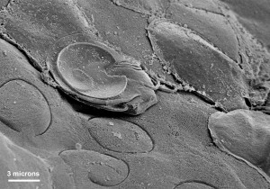 ventral, adhesive, disk, giardia, intestinal, protozoa