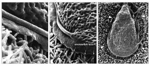 tre, scansione, microscopio elettronico, successivamente, maggiori, ingrandimenti
