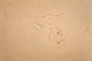 photomicrograph giardia lamblia, trophozoites, mali, crijeva, infekcija, domaćin