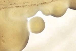morfologiche, aspetto, Neisseria gonorrhoeae, colonie,