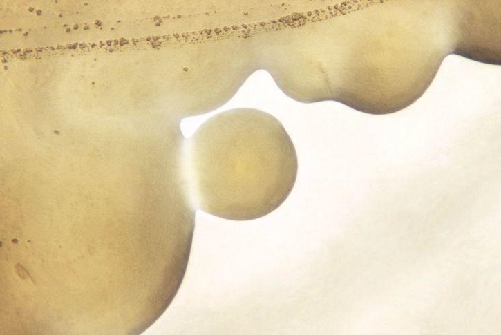 MorphoLogic, ulkonäkö, neisseria gonorrhoeae siirtomaat