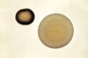 Neisseria, gonorrhoeae, colonie, cresciuto, periodo, i media, di base, agar