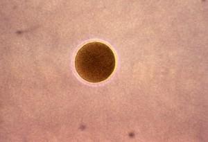 photomicrograph, koloni, neisseria gonorrhoeae