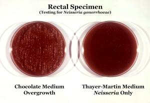 были два, культура, пластины, расти, колоний, neisseria gonorrhoeae, бактерии