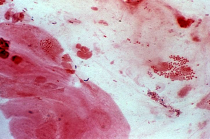 photomicrograph, neisseria, gonorrhoeae, cervical, smear, gram, stain, technique