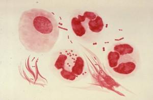 urétrale, exsudat, Neisseria, gonorrhoeae, patient, gonococcique, l'urétrite