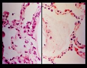 mikroskop-bilde, histopathologic, sammenligning mellom ards