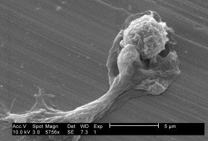 amoebae, assumed, distorted, shape, extruded, pseudopodia