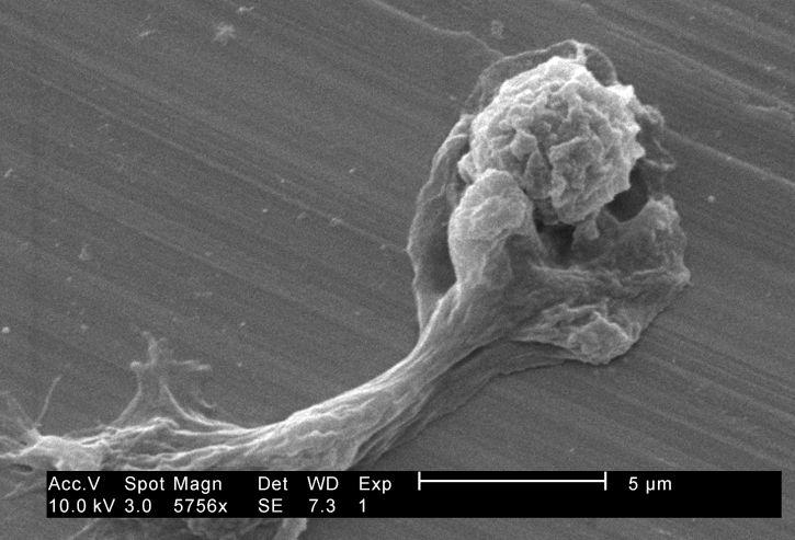 endoparasiterna, antas, förvrängd, form, extruderade, pseudopodia