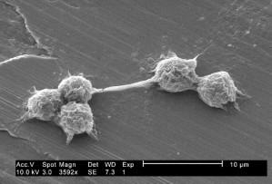 five, hartmannella, vermiformis, amoebae, trophozoites