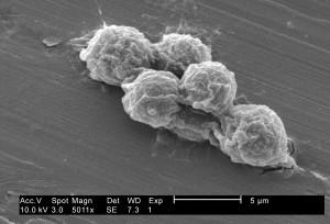 ultrastructurales, morphologie, exposés, petit, groupe, Hartmannella, vermiformis, amibes, trophozoites