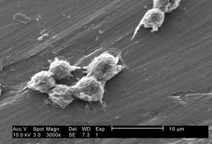 umjereno, visoko, uvećanje, 3000 x, hartmannella vermiformis, amebe, ciste