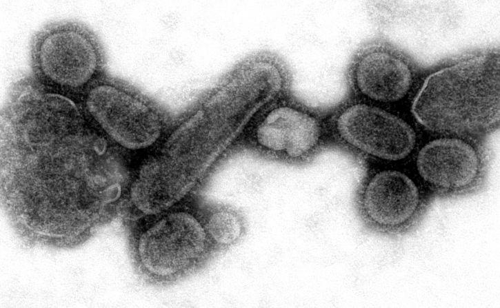 отрицателни, предаване, електрон микроснимка, пресъздадени, 1918, грип, вирионите, събрани, sup
