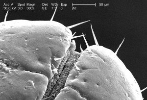 insecte, épines, microscope, gnathosoma, mâle, dermacentor
