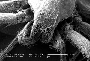 combinaison, tête, thorax, régions, venimeuse, brun, recluse, araignée, Loxosceles, reclusa