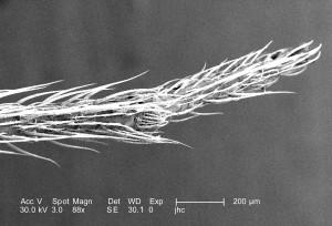 couvert, jambe, venimeuse, brun, recluse, araignée, Loxosceles, reclusa