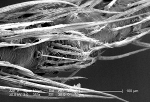 distal, plus loin, l'attachement, le corps, haircovered, jambe, venimeuse, brun, recluse, araignée