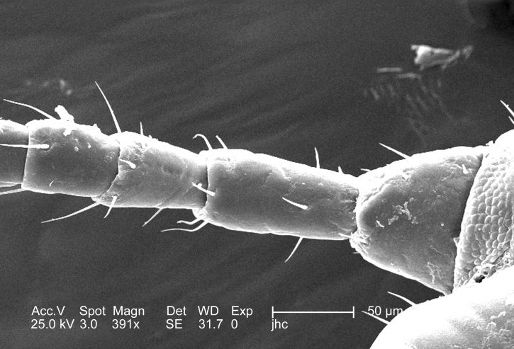 dorsal, proximal, antenna, male, body, louse, pediculus, humanus