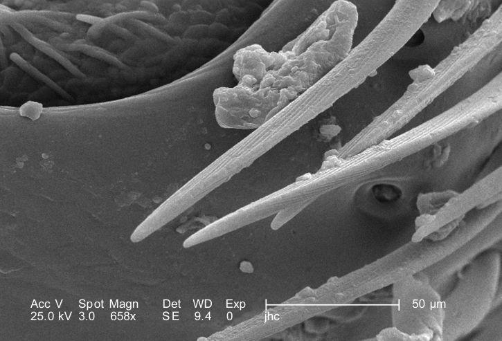 forstørrelse 658 x morfologiske, exoskeletal, detaljer, kvinne, fløyel, maur