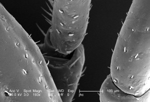 scanning, electron micrograph, male, dermacentor