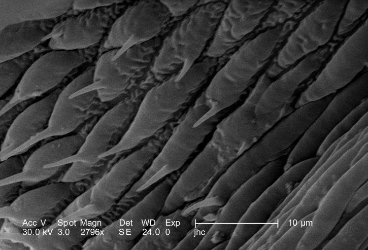 insecte, jambe, composé, six, segments, proximal, coxa