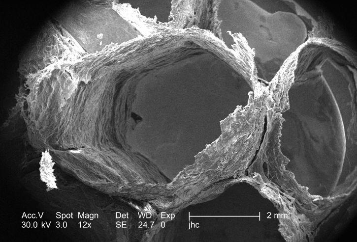 ultrastructural, détails, visible, surface, non identifié, guêpes, nid