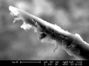 ultrastrukturella, morfologiska Detaljer