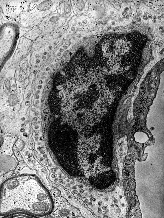 intracellulaire, le groupe, la tumeur, virus, particules, présente, central, nerveux, système