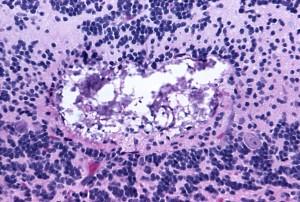 mikroskopa, patohistološkog tamiami, virus, encefalitis, mag, 300 x