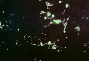photomicrograph, fluorescenční, protilátek, skvrna, leptospira, bakterie, játra, dojem, stěr
