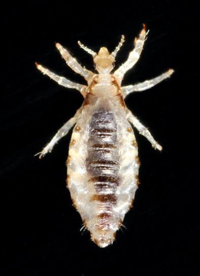 body, lice, infestation, common, worldwide, affects, people, races