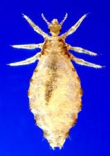 dorsale, femelle, corps, louse, pediculus, humanus, corporis