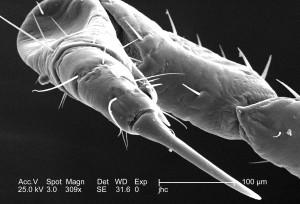 selkä, flexed, foreleg, nainen, elin, täi, pediculus humanus corporis