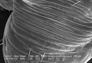 exosquelette, surface, mâle, louse, pediculus, humanus, corporis